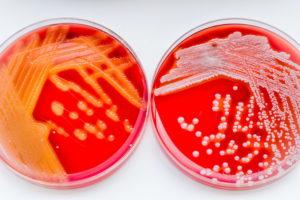 Диагностика и анализы позволят точно определить инфекцию.